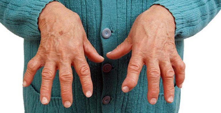 Какие анализы на ревматизм необходимо сдать для постановки диагноза. Ревматизм сердца – причины, симптомы и лечение ревматизма сердца