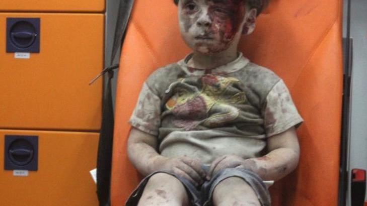 Yaralı olarak kurtarılan Suriyeli kız çocuğu Ümran