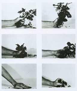 Compression - Poison Oak