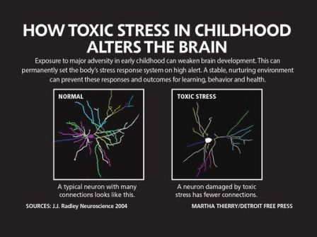 636151885177626005-DFP-toxic-stress-BRAIN-DAMAGE-PRESTO
