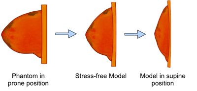 Breast modeling and simulation