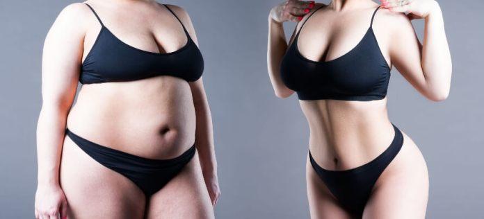 weight loss surgery photos