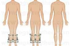 YCLLR--correction-of-X-type-curve-knock-knees-valgus-armenia