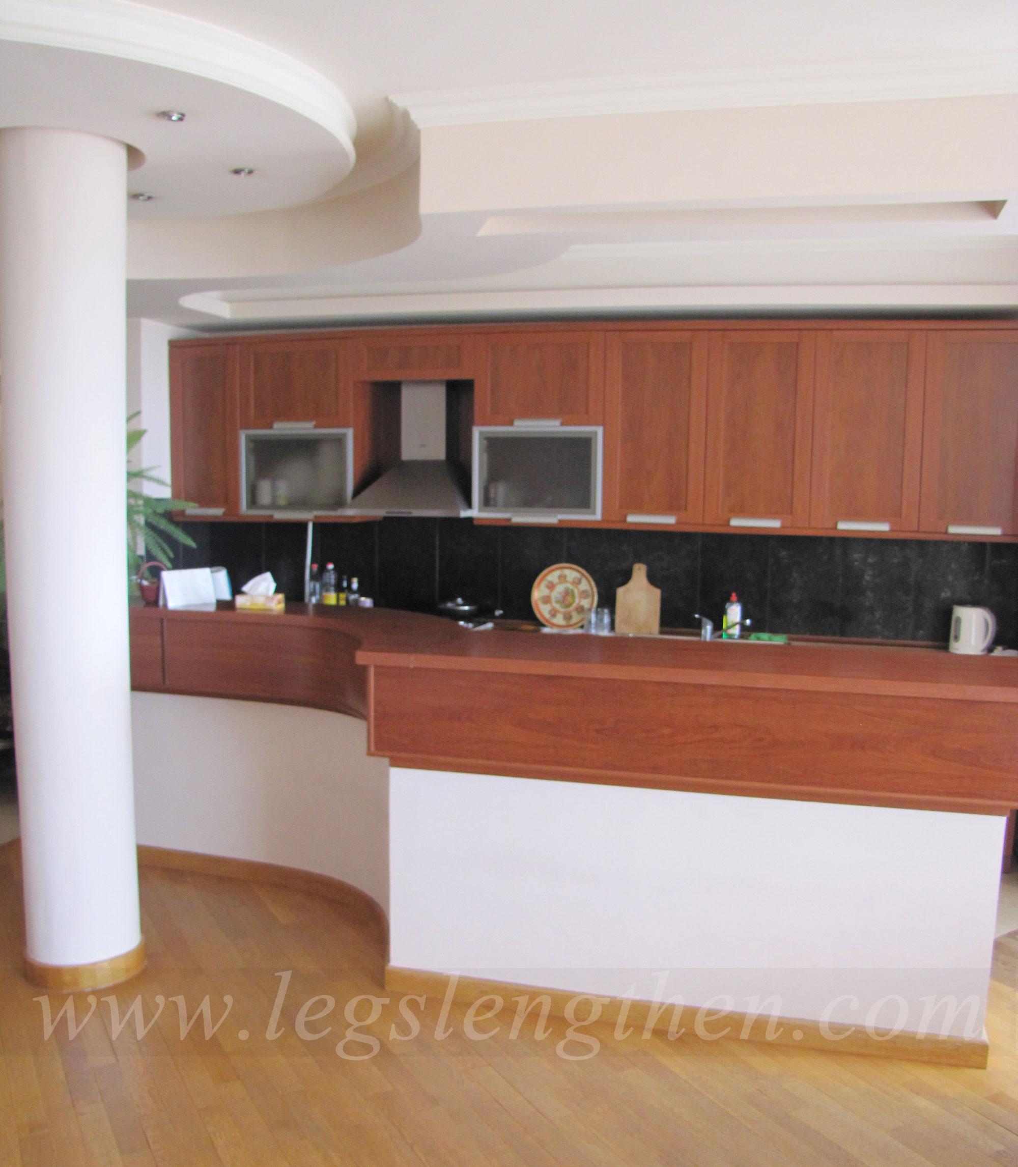2-apartment-legs-lensgthening-armenia.jpg