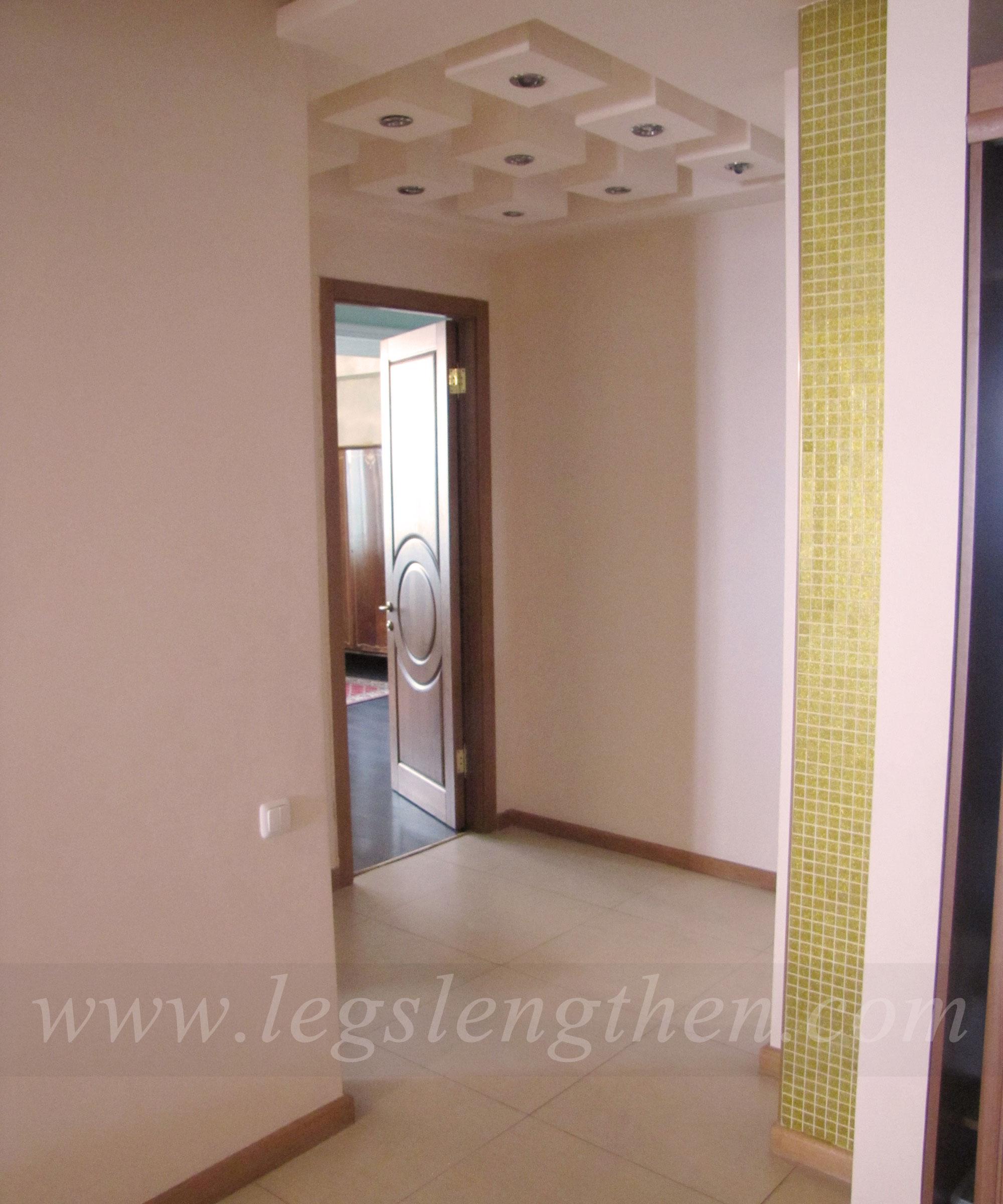 4-apartment-legs-lensgthening-armenia.jpg