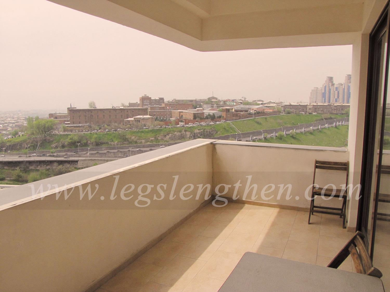 6-apartment-legs-lensgthening-armenia.jpg