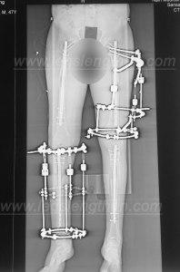 cross-lateral-tibia-femur-lengthening-LON-ycllr-2