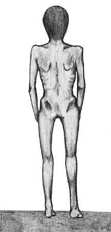 анорексия нервная определение анорексия нервная этиология и патогенез анорексия нервная клиническая картина анорексия нервная диагностика анорексия нервная лечение анорексия нервная, анорексия неврогенная, нервно психическая,