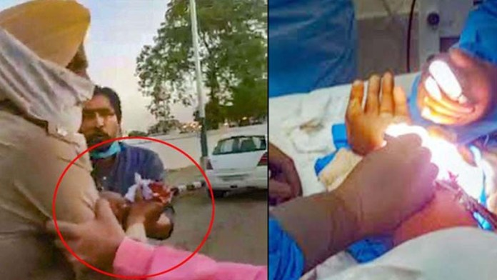 Punjab CM: 7.5-hour wrist surgery of policeman attacked by Nihangs successful