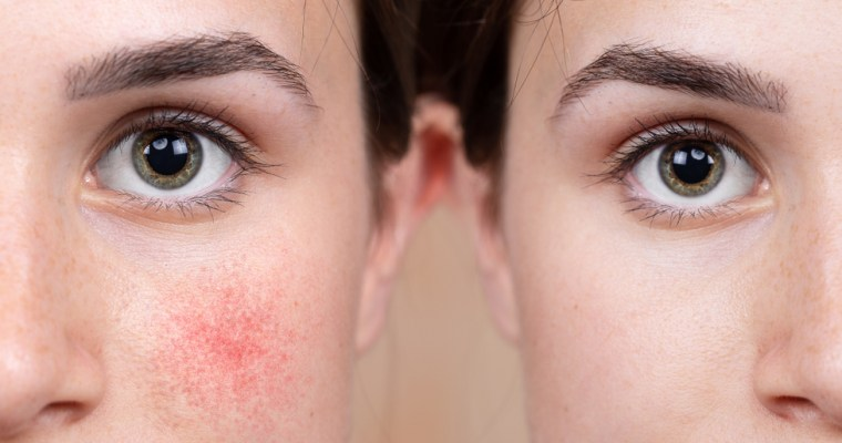 How To Care For Rosacea Prone Skin
