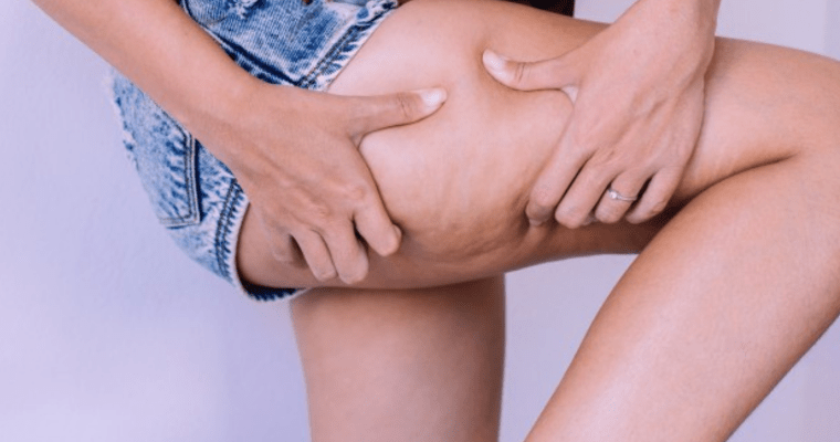 My Top Tips on Reducing Cellulite