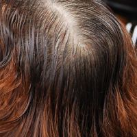 Alopecia Definition & Fact Sheet