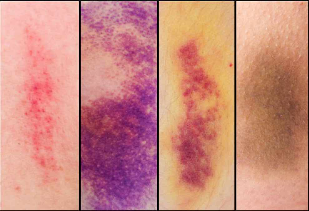Penile Bruising/Injury: Causes, Symptoms Prevention and Cure