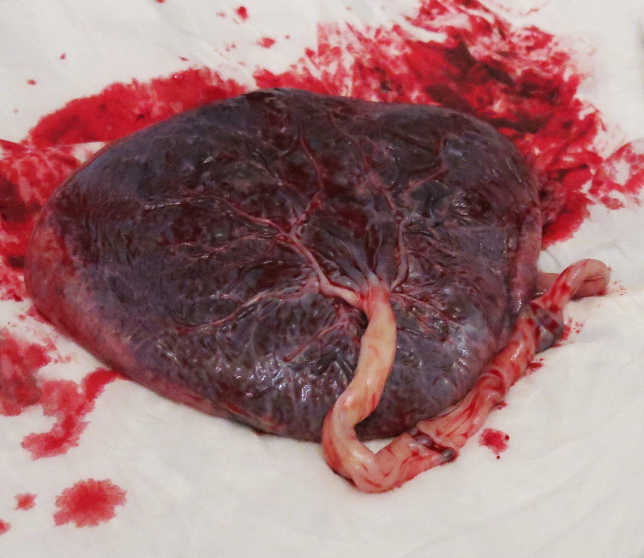 placenta encapsulation why should you do it