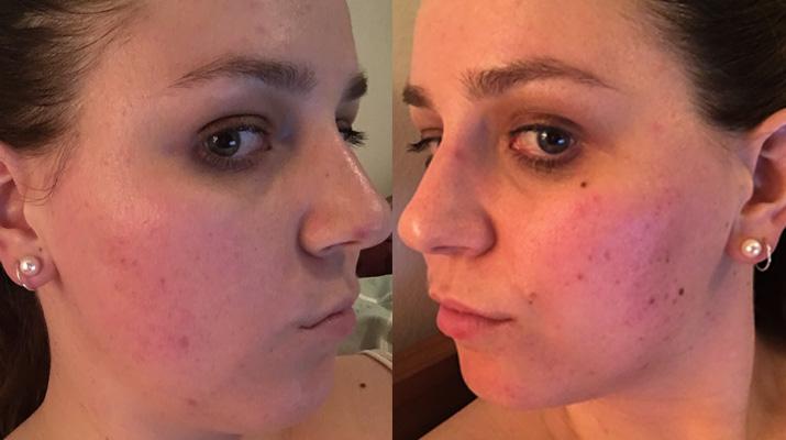 Microdermabrasion results - Lena Talks Beauty