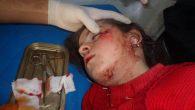 Siria dimenticata, Al-Zabadani e Madaya chiedono aiuto.