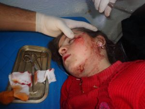 Siria_dimenticata,_Al-Zabadani_e_Madaya