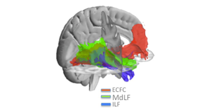 Mars &#8211; <em>BrainStrucFunc</em> &#8211; The extreme capsule fiber complex in humans and macaque monkeys: a comparative diffusion MRI tractography study