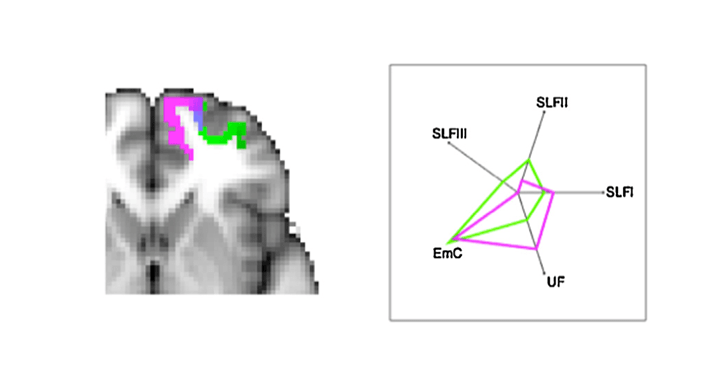 Mars &#8211; <em>NeurosciBioRev</em> &#8211; Comparing brains by matching connectivity profiles