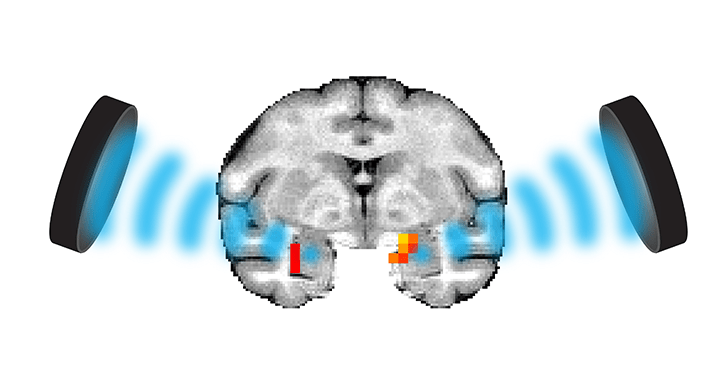 Folloni, Verhagen – <em>Neuron</em> – Manipulation of subcortical and deep cortical activity in the primate brain using transcranial focused ultrasound stimulation