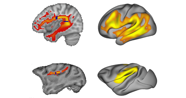 Eichert – <em>Cortex</em> –  What is special about the human arcuate fasciculus? Lateralization, projections, and expansion