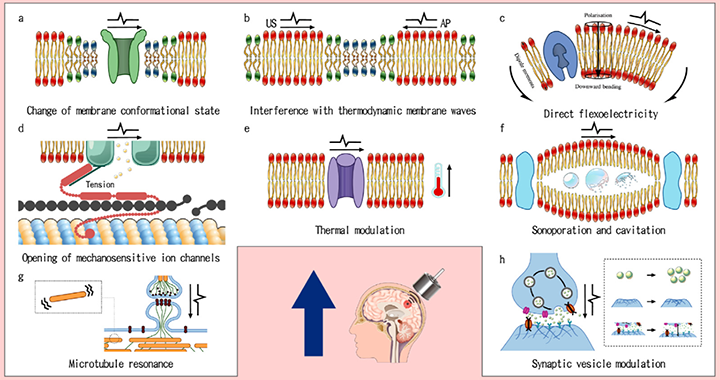 Jerusalem – <em>ActaBiomat</em> – Electrophysiological-mechanical coupling in the neuronal membrane and its role in ultrasound neuromodulation and general anaesthesia