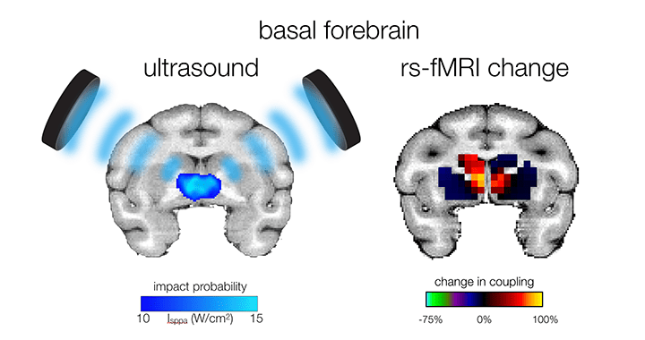 Khalighinejad – <em>Neuron</em> – A Basal Forebrain-Cingulate Circuit in Macaques Decides It Is Time to Act