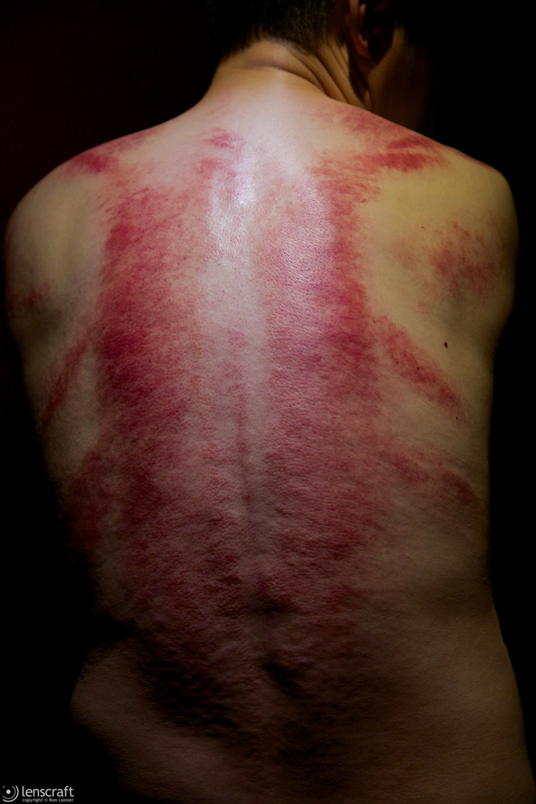gua sha (guoliang) / shanghai, china