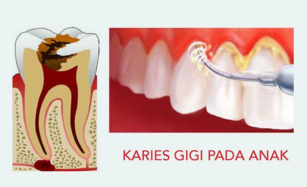 Peran Ibu Dalam Pencegahan Karies Gigi pada anak