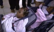 De siamoises à jumelles/ Les bébés sont de retour en bonne santé, à Abidjan