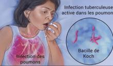 FICHE D'INFO – La tuberculose en Côte d'Ivoire : chiffres et acteurs de la lutte