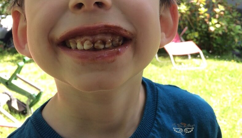 donner envie de se brosser les dents a tes enfants