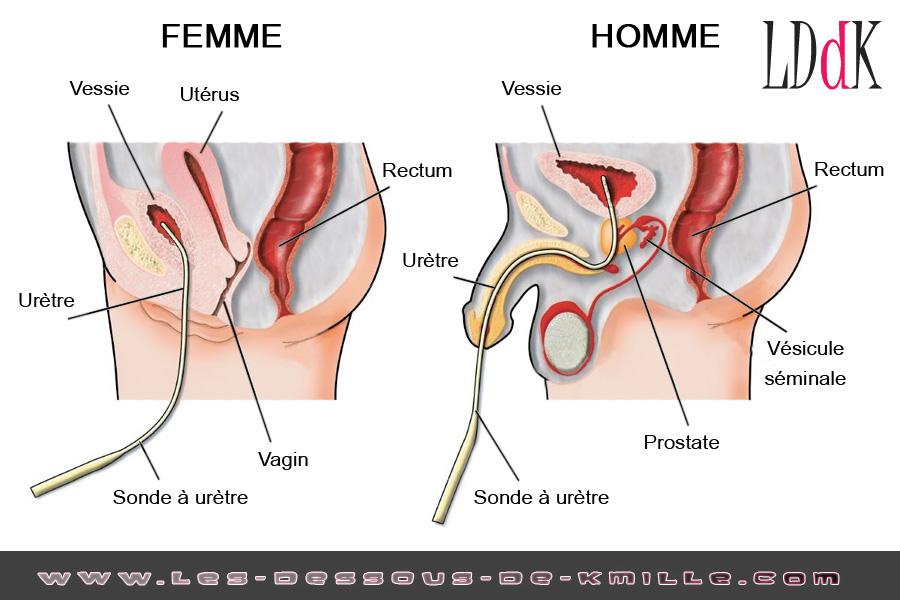Image d'illustration – Le sodurètre, le sounding