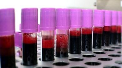 Photo de Dons de sang. La régularité, seul moyen de limiter les pénuries