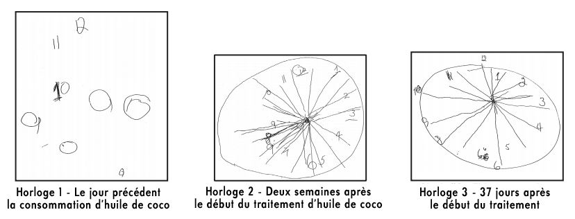 évolution horloge traitement alzheimer huile coco mary newport