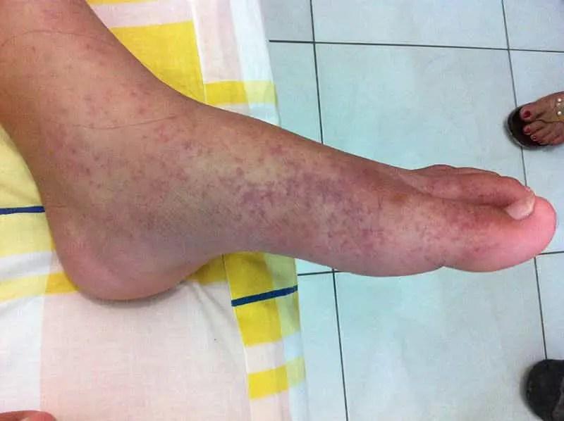 Maladies transmises par le moustique tigre: le chikungunya