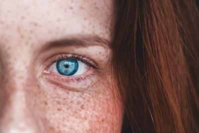 Peau sèche ou déshydratée : quelle différence ?