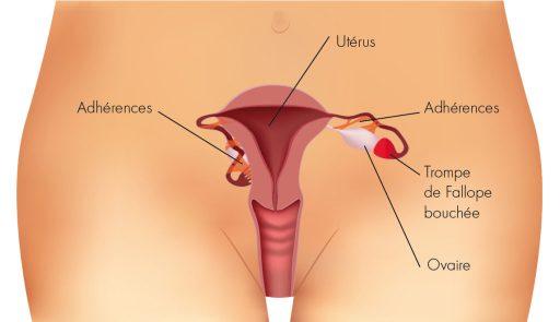 Puissant remède traditionnel pour tomber enceinte en 1 semaine