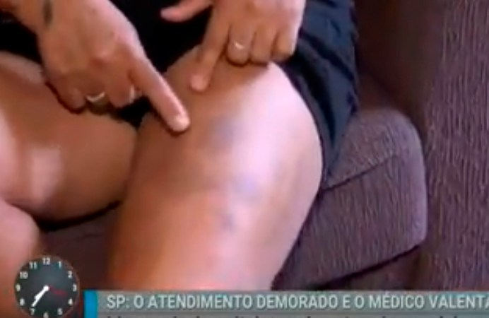 Paciente é agredida por médico no Hospital Cidade Tiradentes