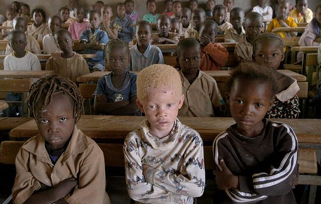 An albino child attends school in Tanzania. File photo. Image by: © Alida Vanni