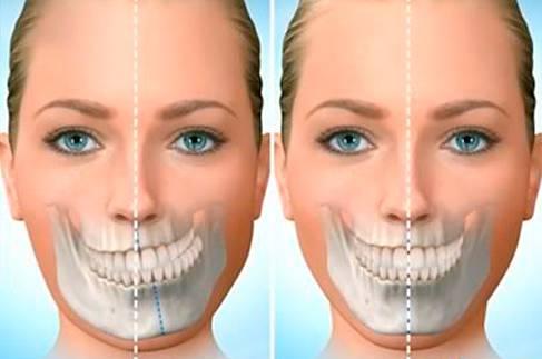 cirurgia-bucomaxilofacial-1