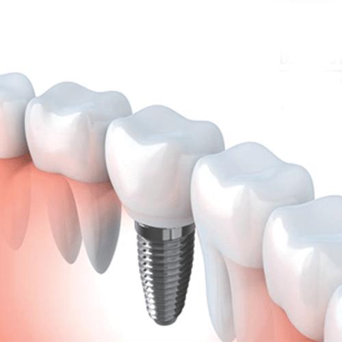 Ortodontia Pré-Protetica