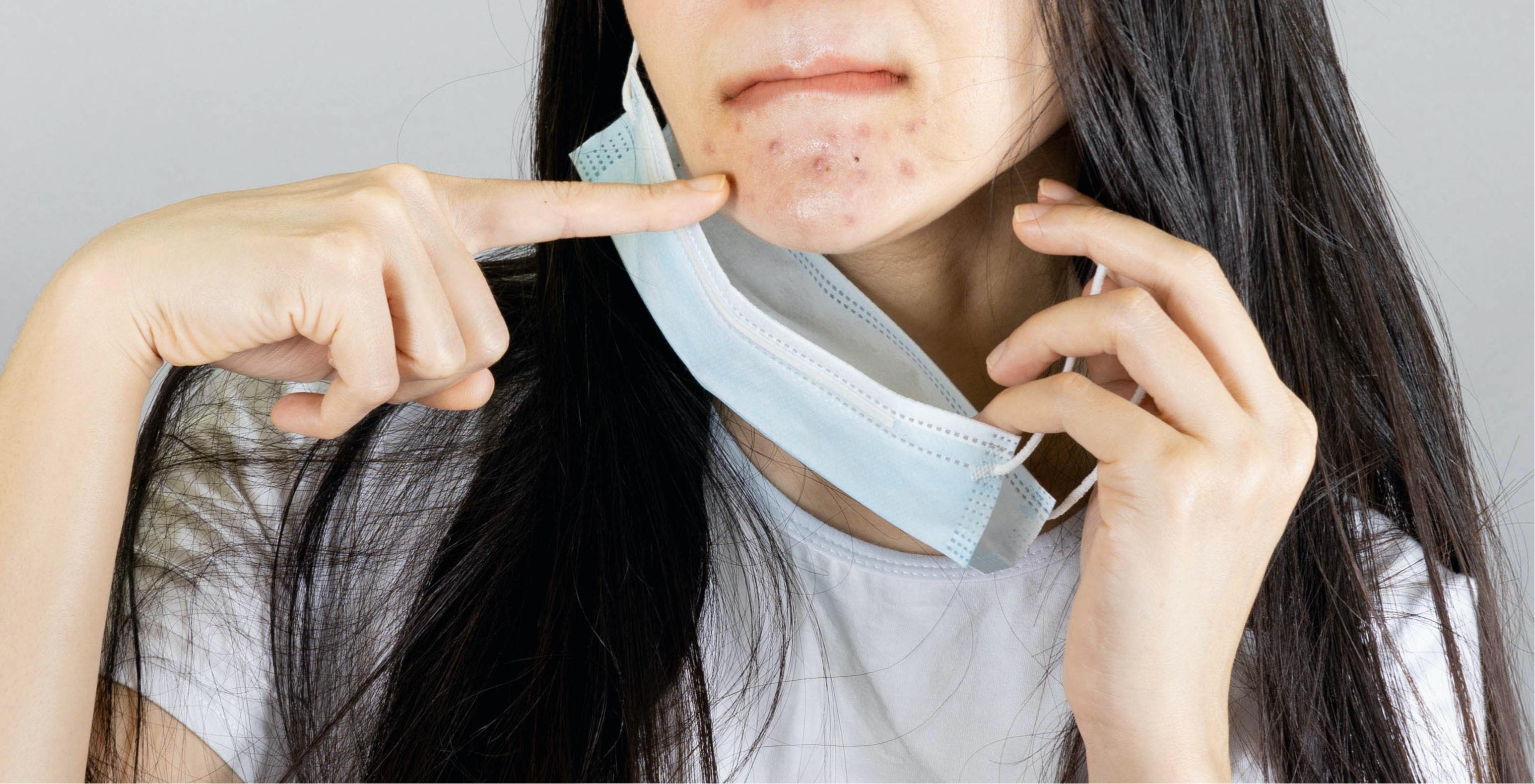 Mask-acné, el efecto de la mascarilla sobre la piel