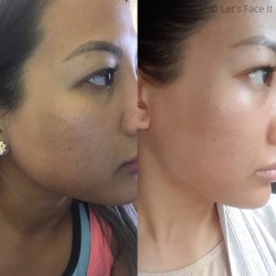 COSRX BHA Blackhead Power Liquid Before and After Results 2