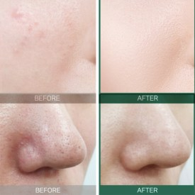 Some By Mi AHA BHA PHA 30 Days Miracle Toner Before After Results