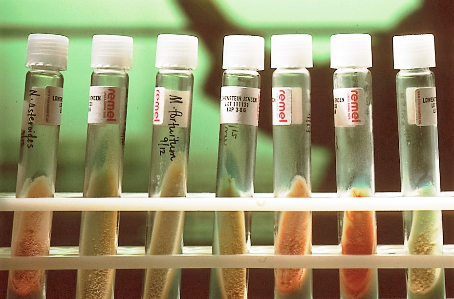 Seven test tubes in a rack, with orange or tan substances in the bottom halves, and white caps on top, against a green background