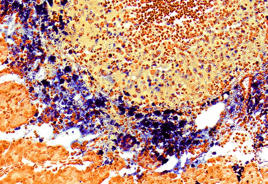 Microscopy image of a tumor section (obtained from a mouse tumor model) shows the blue-stained nanoparticles selectively accumulating in the peripheral tumor area and then penetrating into tumor cells