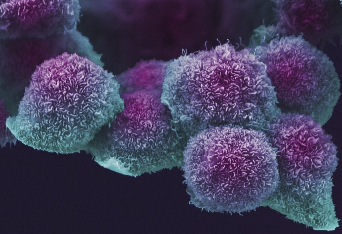 Microscope image of pancreatic cells in purple and teal on a dark background