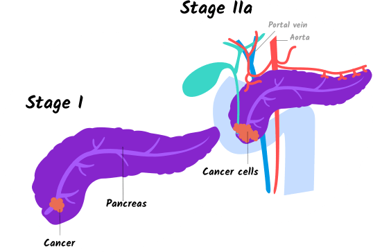Illustration for stage I and stage IIa pancreatic cancer for mobile