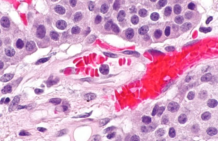 Very high magnification of a pancreatic neuroendocrine tumor in a microscope